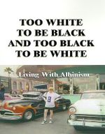 Too White to Be Black and Too Black to Be White : Living with Albinism - Lee G. Edwards
