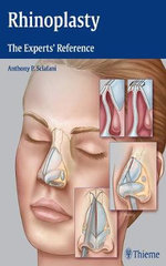 Rhinoplasty : The Experts' Reference - Anthony P. Sclafani