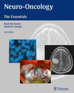 Neuro-Oncology : The Essentials