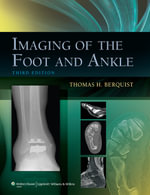 Imaging of the Foot and Ankle : Clinical Companion - Thomas H. Berquist