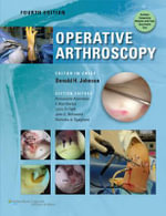 Operative Arthroscopy - Don Johnson