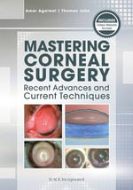 Mastering Corneal Surgery : Recent Advances and Current Techniques - Amar Agarwal