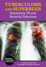 Tuberculosis and Superbugs : Examining TB and Bacterial Infections - PhD Evelyn B. Kelly