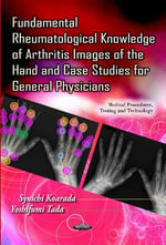 Fundamental Rheumatological Knowledge of Arthritis Images of the Hand & Case Studies for General Physicians : Macroscopic, Histological, and Radiological Diagno...