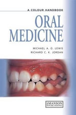A Colour Handbook of Oral Medicine : On Nature - Michael A.O. Lewis
