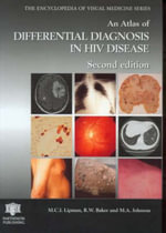 An Atlas of Differential Diagnosis in HIV Disease : Integrating the Visual Arts into the Early Childho... - Marc C.I. Lipman