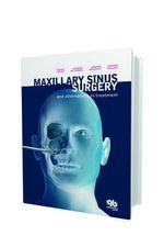 Maxillary Sinus Surgery and Alternatives in Treatment : And Alternatives in Treatment - Tiziano Testori