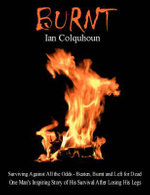Burnt : Surviving Against All the Odds - Beaten, Burnt and Left for Dead. One Man's Inspiring Story of His Survival After Losing His Legs - Ian Colquhoun