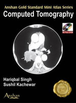 Mini Atlas of Computed Tomography - Hariqbal Singh