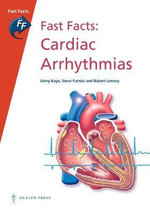 Fast Facts : Cardiac Arrhythmias - Gerry Kaye