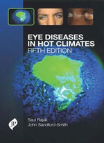 Eye Diseases in Hot Climates - Saul N. Rajak