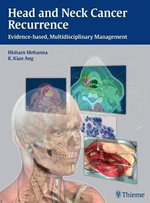 Head and Neck Cancer Recurrence : Evidence-based, Multidisciplinary Management - Hisham M. Mehanna