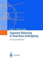 Ligament Balancing in Total Knee Arthroplasty :  Applications in Robotics, User Interfaces and Nat...