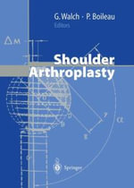 Shoulder Arthroplasty : Unfolding/Folding and Validations