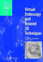 Virtual Endoscopy and Related 3D Techniques