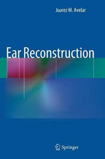 Ear Reconstruction - Juarez Avelar