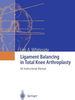 Ligament Balancing in Total Knee Arthroplasty - Leo A. Whiteside