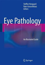 Eye Pathology : An Illustrated Guide