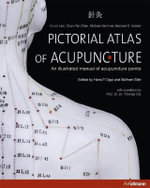 Atlas of Acupuncture : How You Can Prevent Osteoporosis & Have Strong Bon... - Wolfram Stor