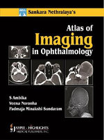 Atlas of Imaging in Ophthalmology : Neuro-Ophthalmology - S. Ambika