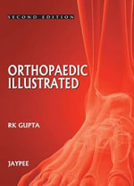 Orthopedics Illustrated : 35 - R. K. Gupta