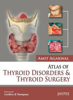 Atlas of Thyroid Disorders and Thyroid Surgery - Amit Agarwal