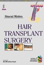 Hair Transplant Surgery - Sharad Chandra Mishra