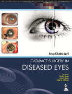 Cataract Surgery in Diseased Eyes - Arup Chakrabarti