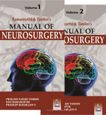Manual of Neurosurgery - Prakash Narain Tandon