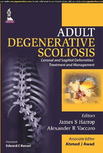 Adult Degenerative Scoliosis - James S. Harrop