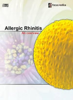 Allergic Rhinitis : An Overview