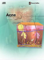 Acne : An Overview