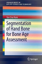 Segmentation of Hand Bone for Bone Age Assessment - Yan Chai Hum