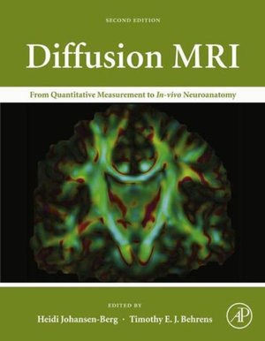 Diffusion MRI : From Quantitative Measurement to In vivo Neuroanatomy - Heidi Johansen-Berg