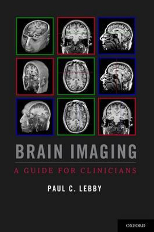 Brain Imaging: A Guide for Clinicians Paul C. Lebby
