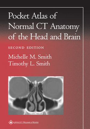 Pocket Atlas of Normal Ct Anatomy of the Head and Brain Anton N. Hasso and Miyuki Shakudo