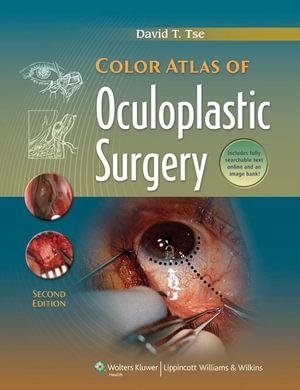 Oculoplastic Surgery Atlas Eyelid and Lacrimal Disorders 2nd Edition (PDF)