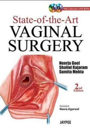 Vaginalsauger