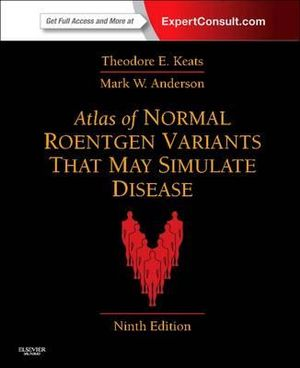 Cover of Atlas of Normal Roentgen Variants That May Simulate Disease