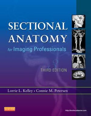 Cover of Sectional Anatomy for Imaging Professionals, 3e
