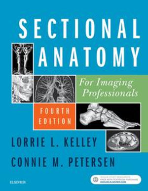 Cover of Sectional Anatomy for Imaging Professionals - E-Book