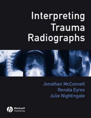 Cover of Interpreting Trauma Radiographs
