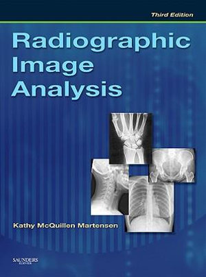 Cover of Radiographic Image Analysis